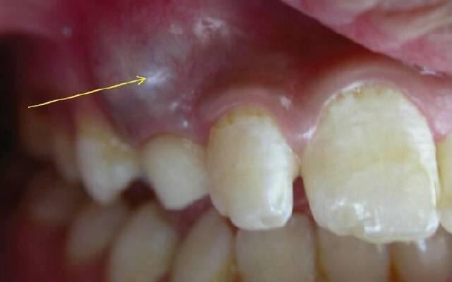 Удаление кисты зуба без боли быстро и недорого