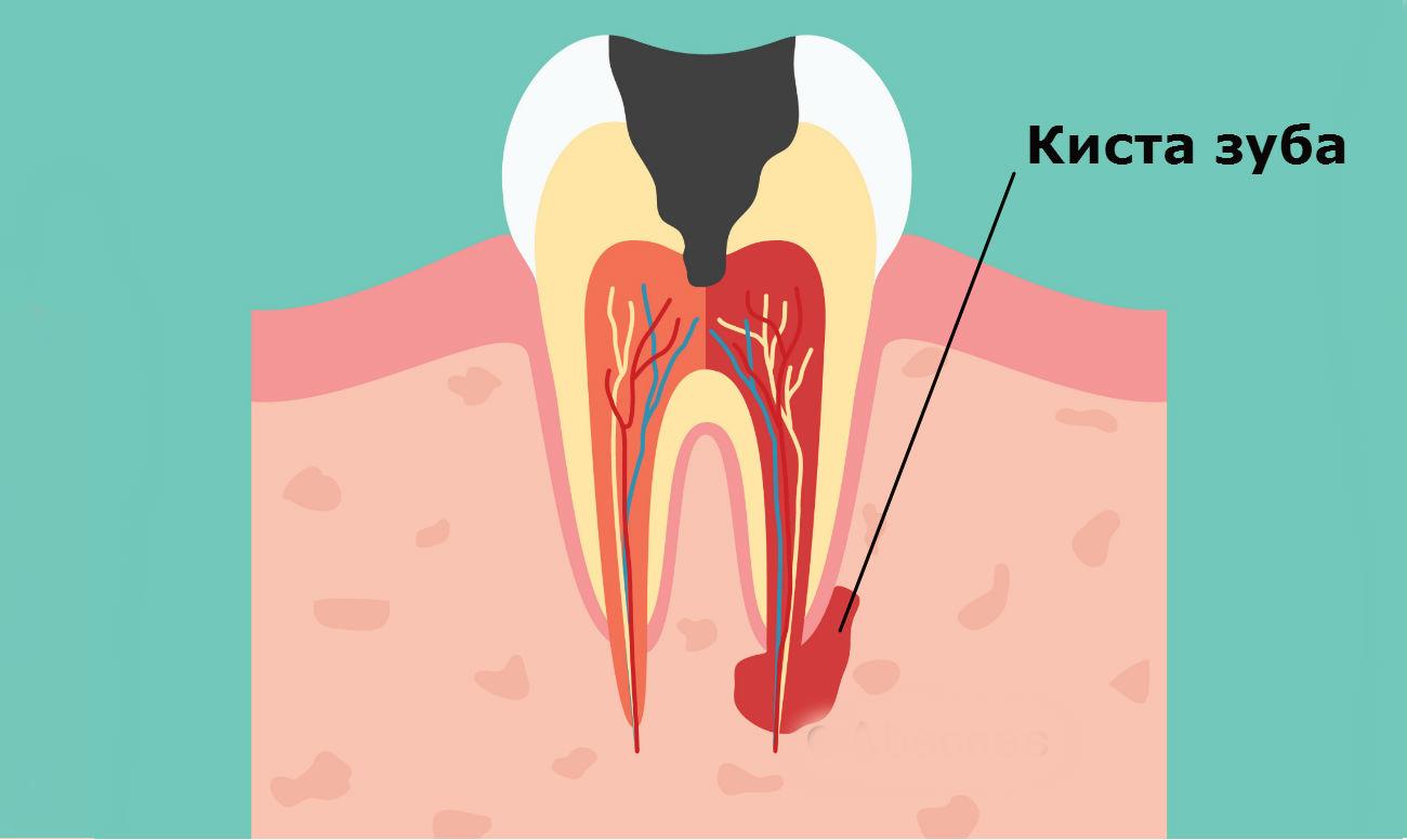 Киста зуба самые эффективные профессиональные и народные методы лечения