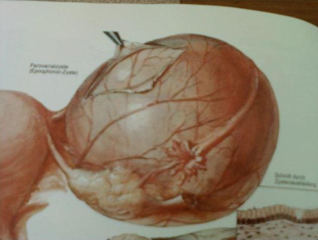 Параовариальная киста яичника причины