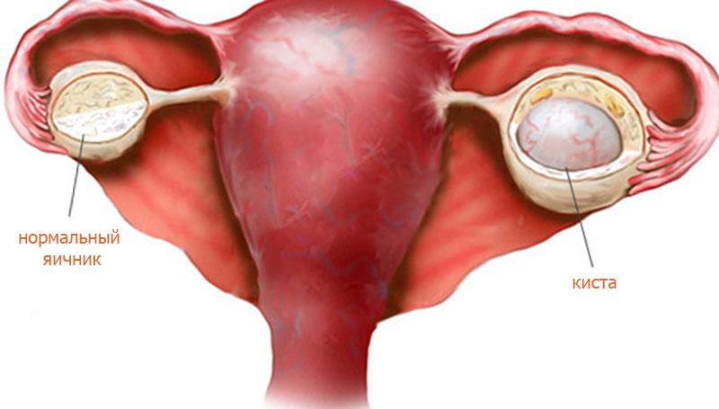 Киста левого яичника: какими симптомами сопровождается у женщин, а также причины возникновения при беременности и лечение