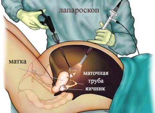 Что болит при кисте яичника