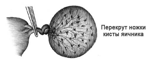 Как лечить фолликулярную кисту яичника