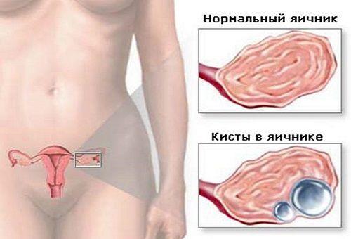 Уз признаки кисты правого яичника 12