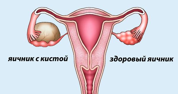 Как рассасывается фолликулярная киста яичника причины патологии